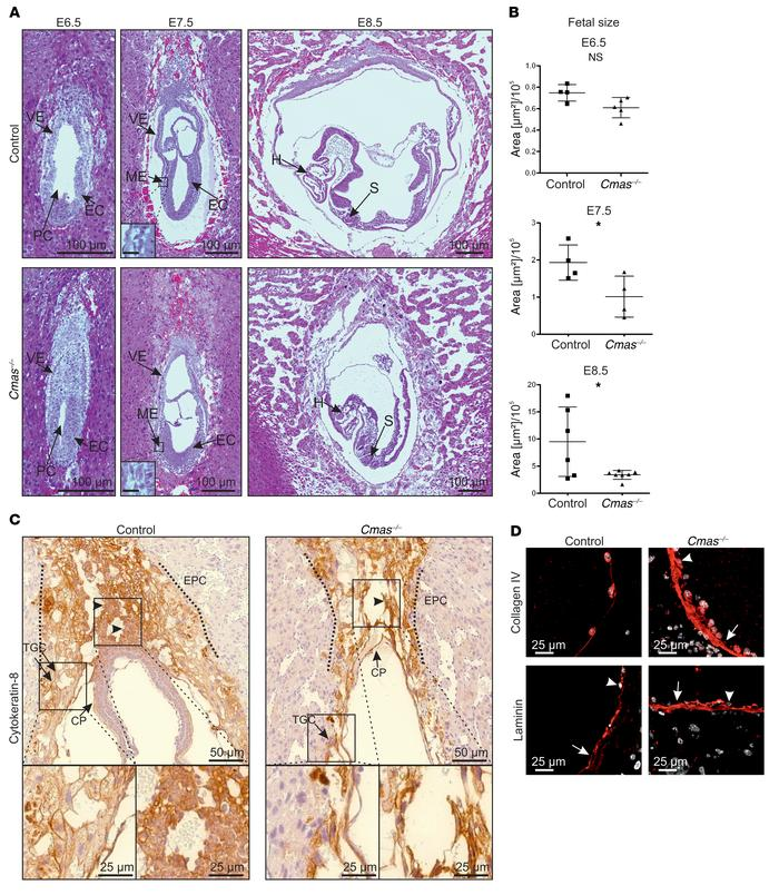 Cmas–/– mice exhibit IUGR and extraembryonic developmental deficits. (A...