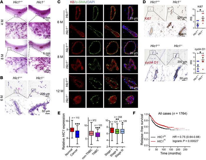 HIC1 deletion induces hyperplasia of mammary gland in vivo. (A) Represen...