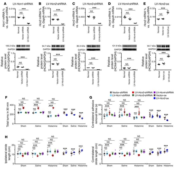 The HCN2 channel is responsible for the histamine-induced amelioration o...